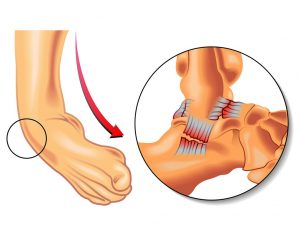 آسیب های ورزشی مچ پا